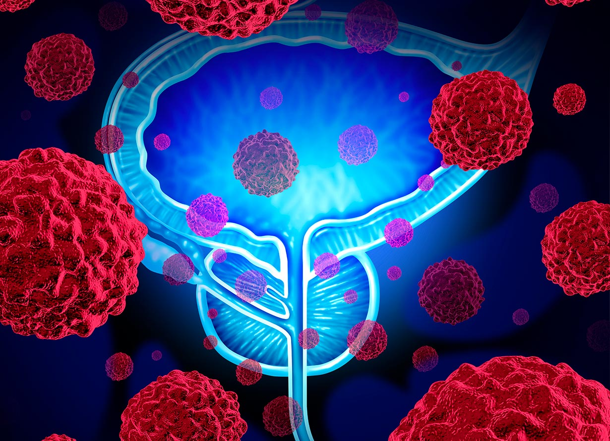 Arte com a anatomia da próstata em azul e células vermelhas ao redor (crédito: wildpixel – iStock)