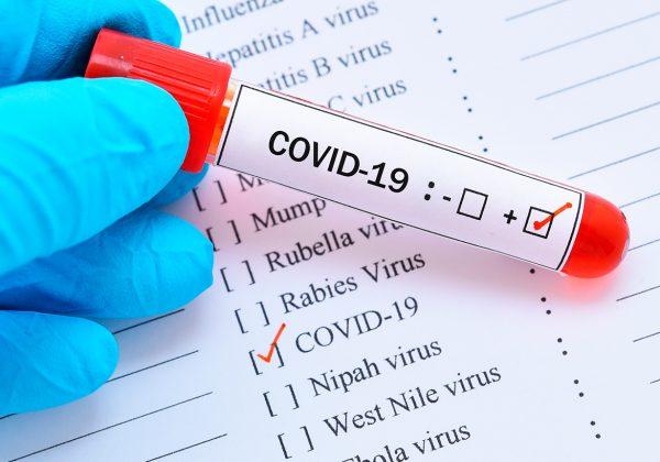 Foto em detalhe de mão segurando um tubo de ensaio com sangue dentro. Nele, há uma etiqueta com a escrita coronavirus e um tique no sinal de positivo. Ao fundo, há uma folha branca com diversas doenças listadas